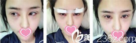 上海鲁南整形医院于景浩眼修复真人案例术后第五天
