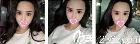 上海鲁南整形医院于景浩眼修复真人案例术后三个月