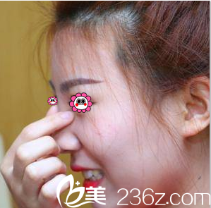 找北京京都时尚常青花近五万做硅胶假体鼻综合隆鼻第67天效果我挺喜欢
