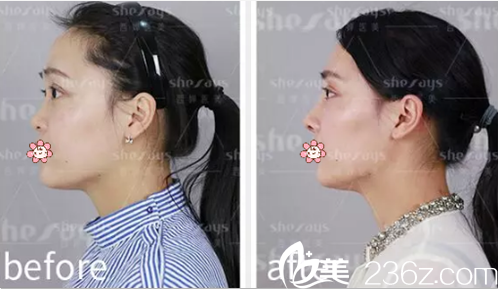 成都西婵整形美容医院胡山隆鼻术后效果