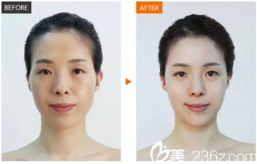 东莞美极医疗美容面部除皱案例对比图