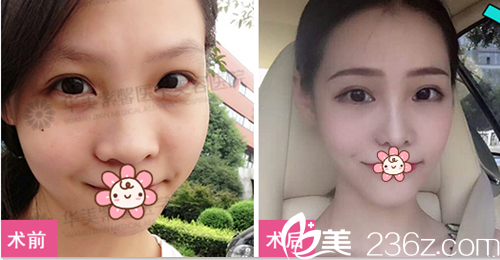 四川华美紫馨隆鼻术后照片