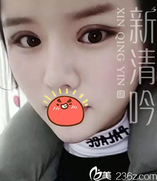 作为杭州新清吟的员工,我义不容辞地选择陈永院长做了眼综合和自体脂肪全脸填充