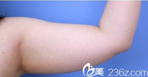 日本湘南美容外科医院中村大辅术前照片1
