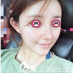 北京玲珑梵宫做硅胶假体垫下巴第27天效果