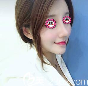 北京玲珑梵宫医疗美容医院王光辉术后照片1