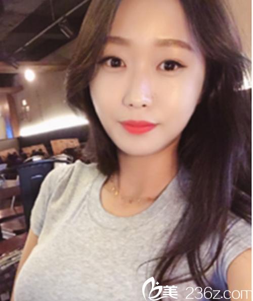 看韩国ID整形医院vline手术+High-L颧骨缩小手术+纳米脂肪移植的术后效果,扎心了!