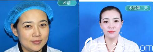 青岛诺德医院线雕提升手术案例