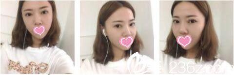 80后小姐姐用线雕挽留青春的脸庞,上海宏康孙樱航面部埋线提升效果真的很好