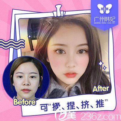 广州韩妃刘志刚隆鼻案例