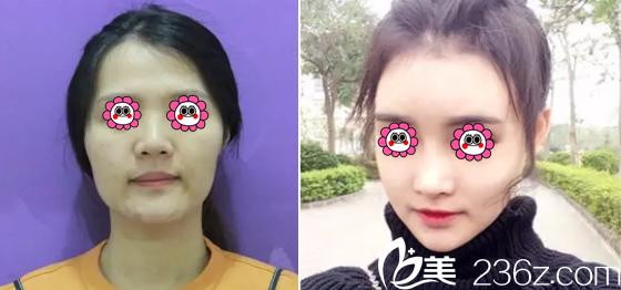 北京煤炭总医院整形科下颌角整形多少钱?李敏下颌角整形98000元起