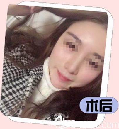 咨询杭州东方整形王成现医生才知道鼻部取出奥美定后可以直接植入假体,现在清奥同步修复1年了没什么异样