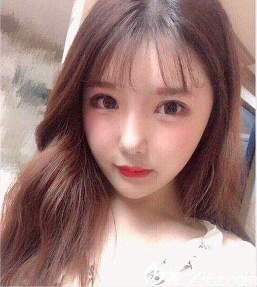 韩国faceline医院的颧骨缩小术+眼鼻综合实现我的芭比网红脸