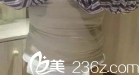 杨辉专家为我刚做完腰腹吸脂术后有肿胀感