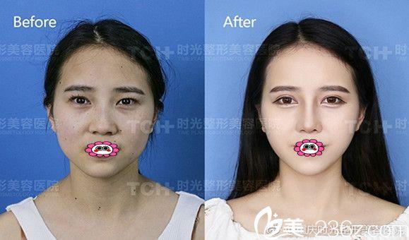重庆时光整形医院时光嘉年华开始啦,年终狂欢价瘦脸针低至188元