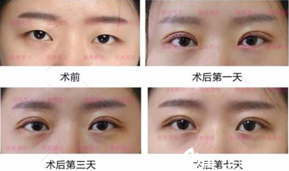 衡阳雅美双眼皮手术术后恢复一周的过程