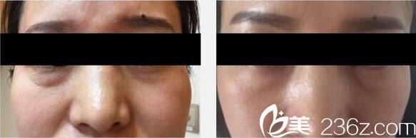 颜悦医疗美容中心祛眼袋真人前后效果对比