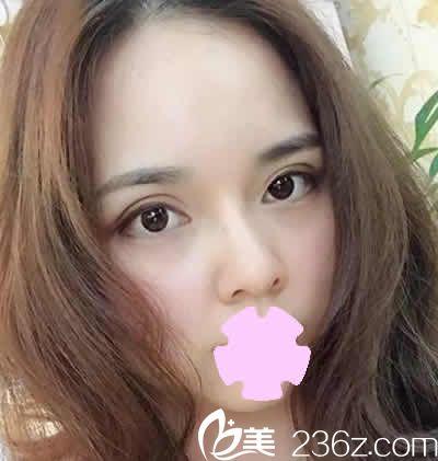 山西省整形外科医院刘晋元全切双眼皮+鼻综合1个月恢复效果 附真实对比照
