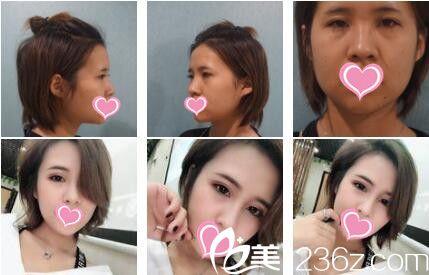 上海爱度医疗美容门诊部眼综合真人案例