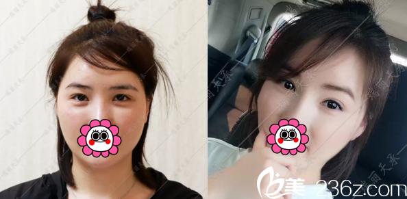 北京瑞丽天承赵惠春双眼皮修复案例