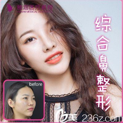 深圳雅涵隆鼻大王高山教授做的隆鼻案例图片