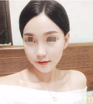下颚凸出找韩国原辰整形金光镇做整形后原本的月牙脸现变为萌萌少女