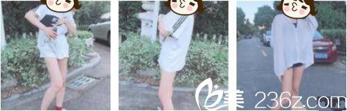 如何快速瘦腿?自从在上海薇琳找张怀军做的抽脂瘦腿后感觉人生就像开挂了一样
