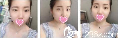 曲妙轩用全切双眼皮改变了我的小眼睛,我才知道上海喜美做双眼皮真的很靠谱