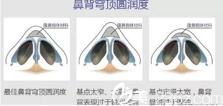 桂林叶氏嘉美隆鼻手术贵不贵?近期整形优惠价格表公开隆鼻手术6800元起