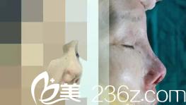 在青岛隆鼻修复三次总花费近6万,从开始畸形的猪鼻子变成现在这个样子