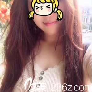 在北京南加找魏瑸做威宁之星假体隆胸有一年了价格优惠