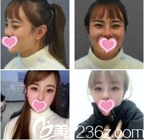 上海百达丽医疗美容门诊部赵殷花肉毒素瘦脸针真人案例