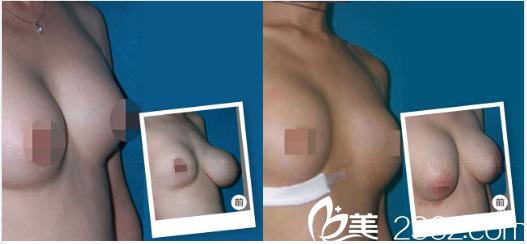 广州海峡谭新东胸部奥美定取出修复案例