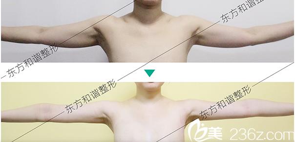 北京东方和谐吸脂瘦手臂多少钱?吸脂瘦手臂13900元起附案例