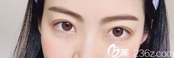知道浙医一院范希玲在杭州树兰医院坐诊后,就预约范希玲医生做了双眼皮和去皮去脂手术