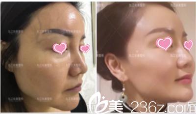 九江台美超声刀治疗真人案例全程展示:摆脱法令纹、苹果肌下垂、无惧年龄变更美