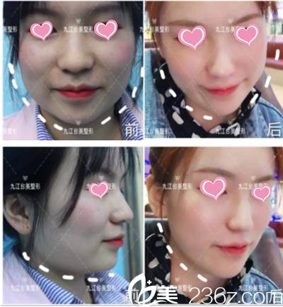 分享下我在九江台美注射瘦脸针后轻松拥有小V脸的蜕变经历吧
