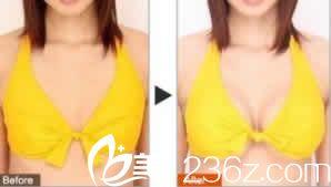 太原美林苑整形自体脂肪隆胸效果对比图