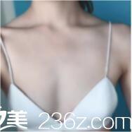 上海九院余力假体隆胸真人案例术前照