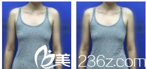 因价格优惠我在北京亚馨美莱坞医院找李辉做自体脂肪隆胸来看2个月效果