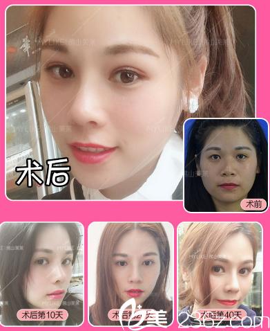 佛山美莱刘永扬双眼皮隆鼻案例