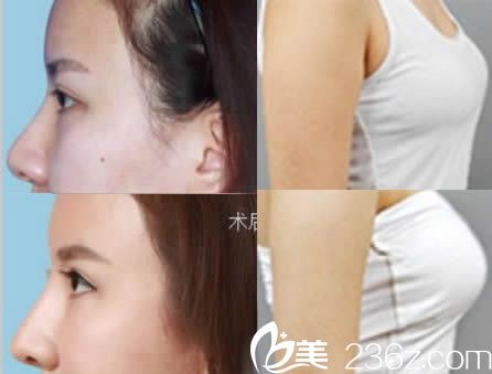 东莞缔美整形赵可医师假体隆鼻和假体隆胸效果图