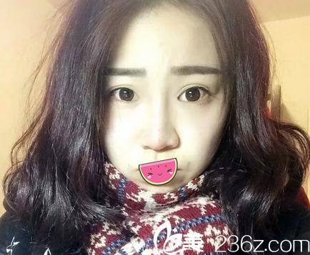 喜欢成都艺美汇刘明铭的隆鼻风格,找他做了假体隆鼻+耳软骨垫鼻尖