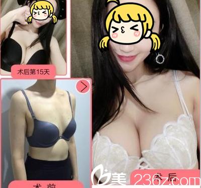 北京玲珑梵宫自体脂肪丰胸特惠进行中!王光辉自体脂肪丰胸12800元起附案例