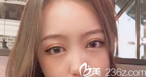 看了杭州余杭正规整形排行榜,我选择杭州西芷整形医院做了全切双眼皮+开眼角综合手术