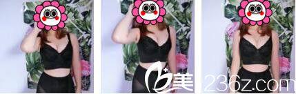 上海韩镜医疗美容医院刘平给我做的曼托假体隆胸1个月了期待恢复后变柔软