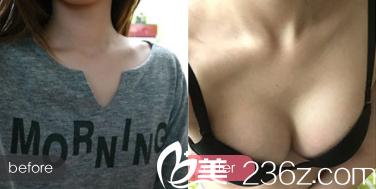 北京三仁张劲脂肪丰胸案例