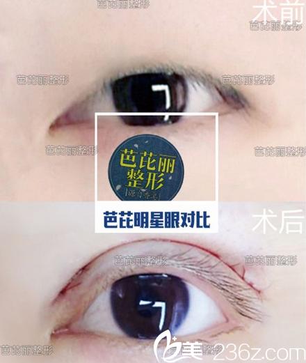 广西南宁芭芘丽眼综合案例