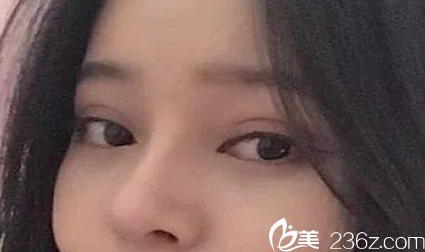 在昆明爱莱美整形找李元骏做全切双眼皮一个月后恢复效果图
