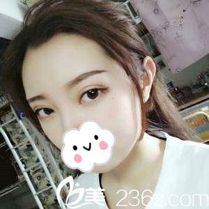 分享娄底京都邓小丽院长给我做的韩式双眼皮术后20天的效果,你说好不好?